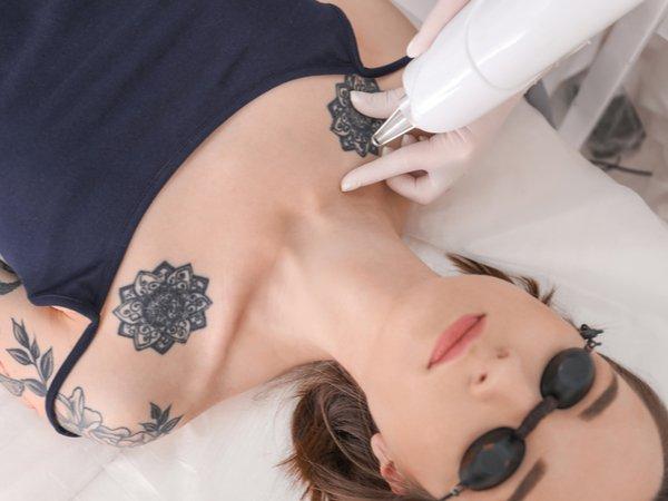 Laser-Tattoo-Entfernung
