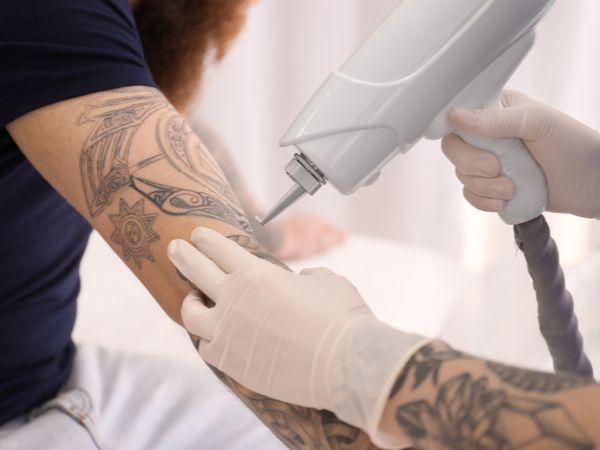 Laser Tattooentfernung - 1/3 oder 6 Behandlungen